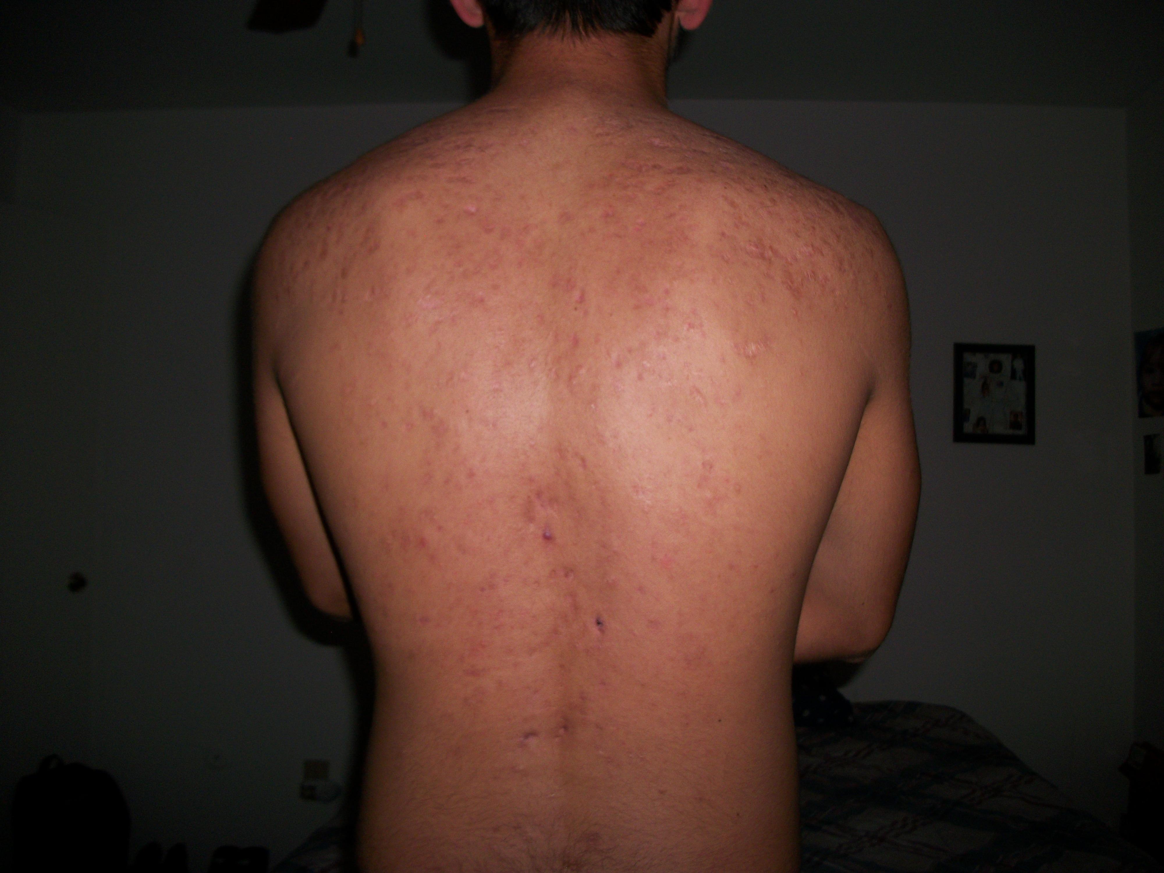 Back Scars