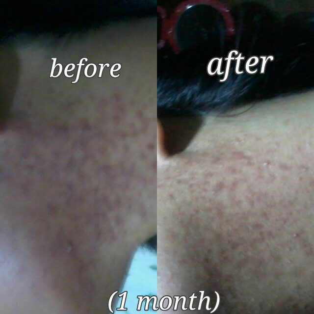 Skin Update (Week 4)