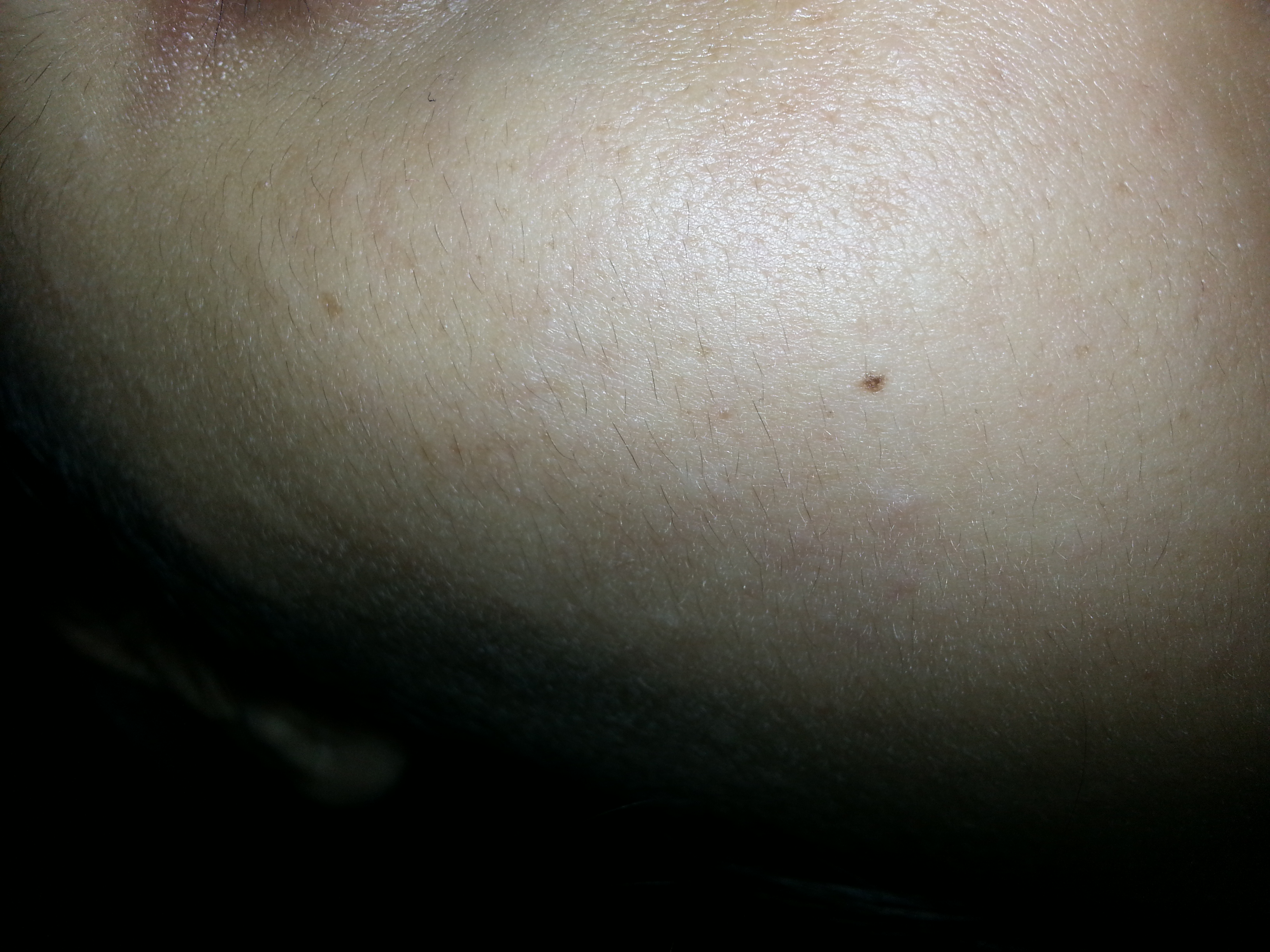 Tiny Clear Bumps All Over Face