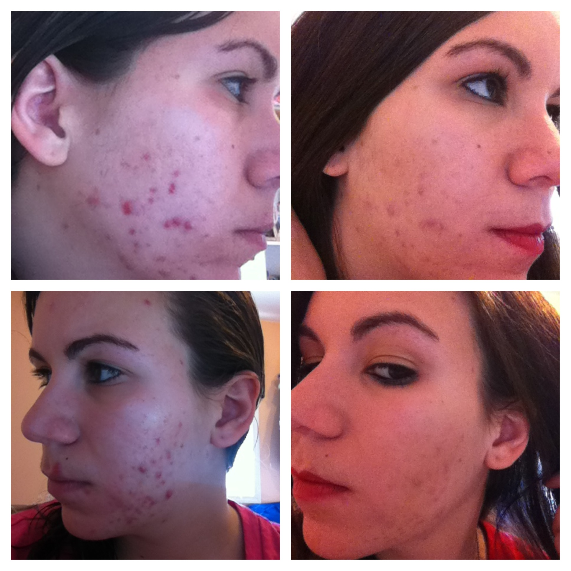 My Strange Acne Timeline (After Accutane 2X) - The Beginning