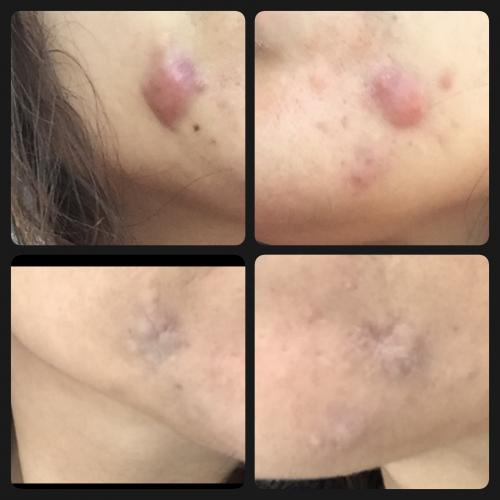 how to get an acne cyst to go down