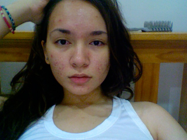 acne is my biggest insecurity.