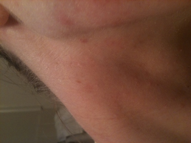 Oct 20 right side Of neck