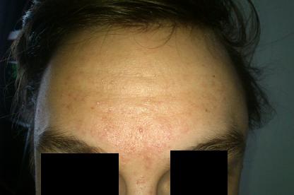 Forehead 28 Sep
