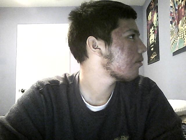4 weeks right side.
