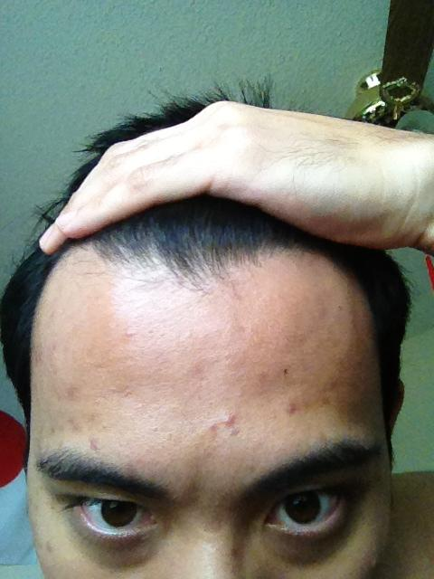 Day 1 - Forehead