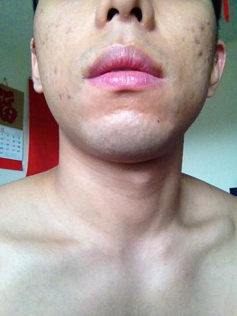 Day 1 - Chin