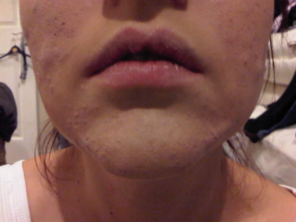 Chin With Makeup