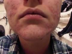 Chin Makeup Free