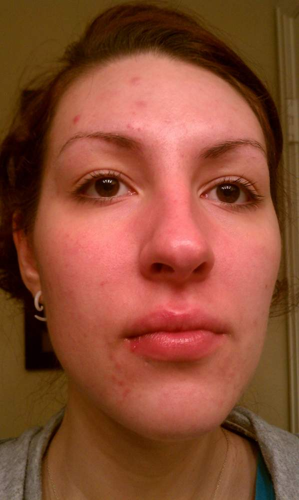 Day 14 on Accutane