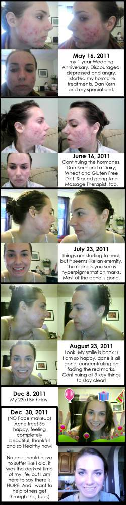 Skin Progression