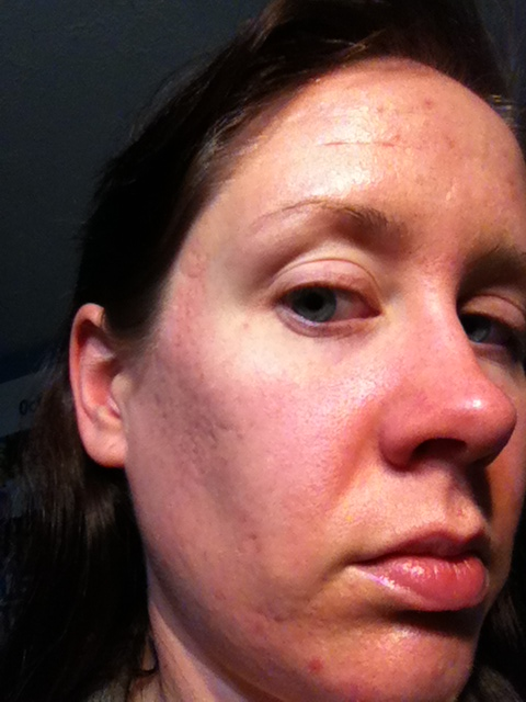 After 5 treatments with skinpen (microneedling)