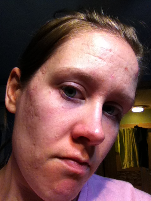 Right side of face, cheek scars (and some chin)