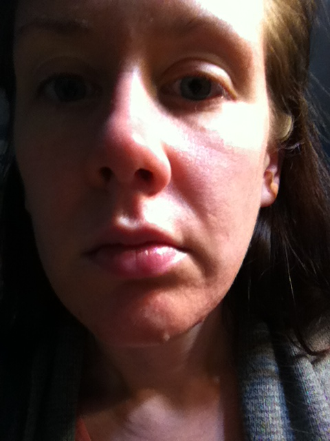 After 5 SkinPen (microneedle) treatments