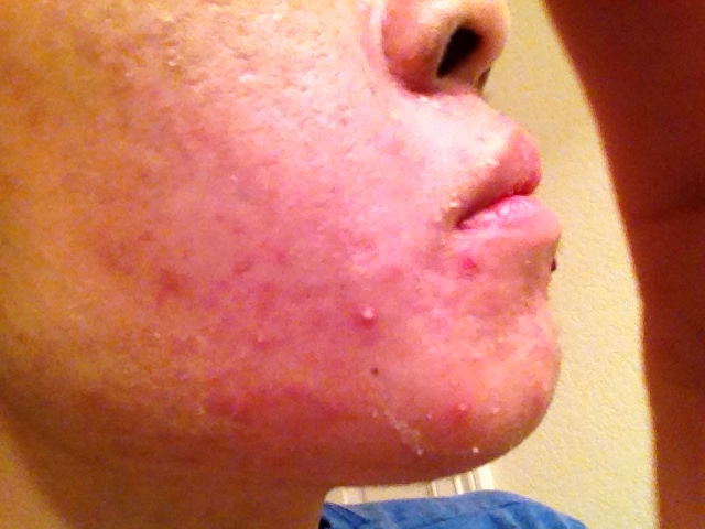 Acne scars and acne up close