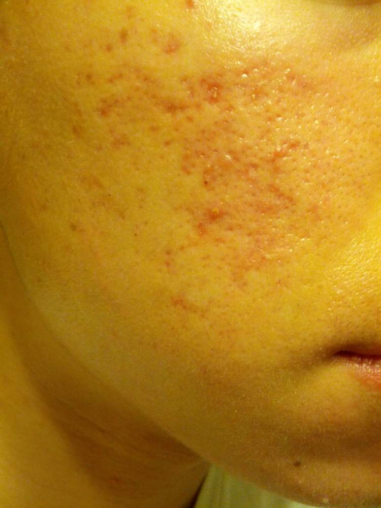 Acne before starting the regimen