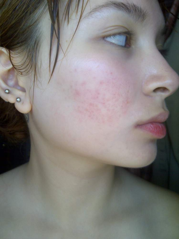 Scarring and redness post Accutane