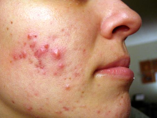 Cystic Acne + Accutane 2011