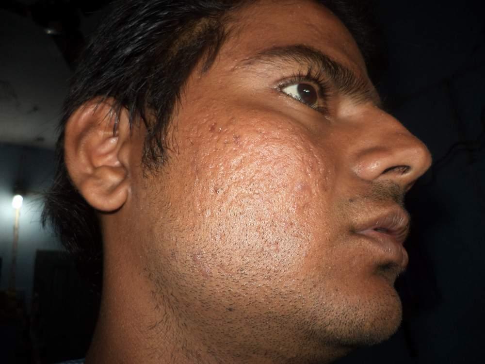 my acne2