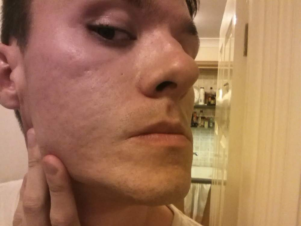 right cheek (stretched)