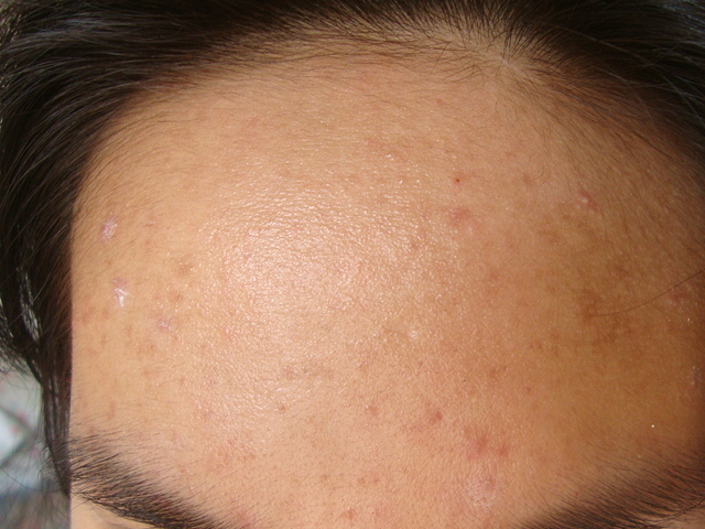Forehead (21st week)