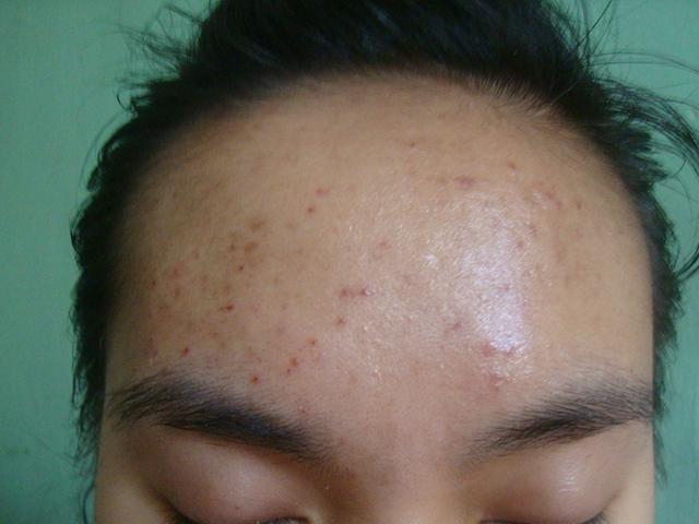 Forehead  (19th wk)