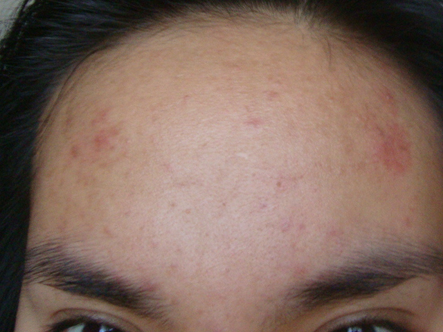 Forehead Feb 28, 2012