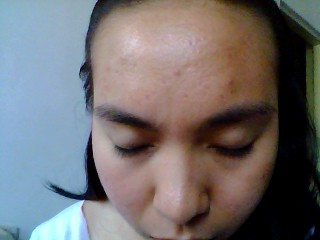 Forehead/front may 25,2012