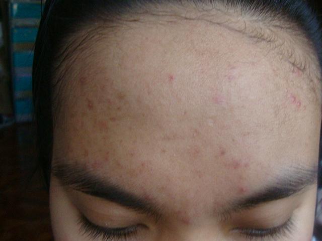 Forehead Feb 25,2012