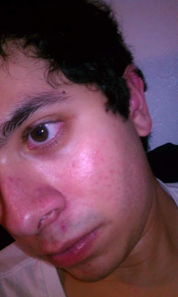 My face again