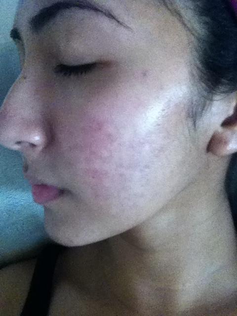 left cheek - 4 months into accutane
