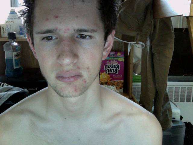 My Face :(