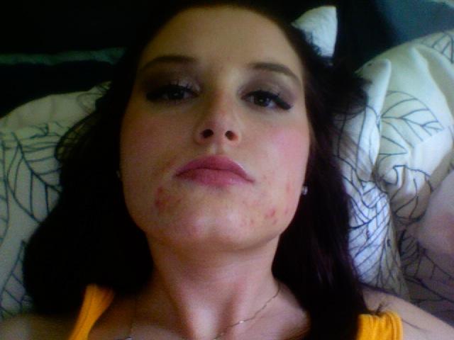 pre-acne.org regimen