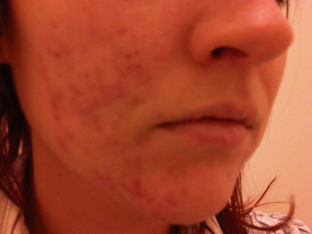 Right Cheek (No Make-Up) 11 Weeks on Tetralysal