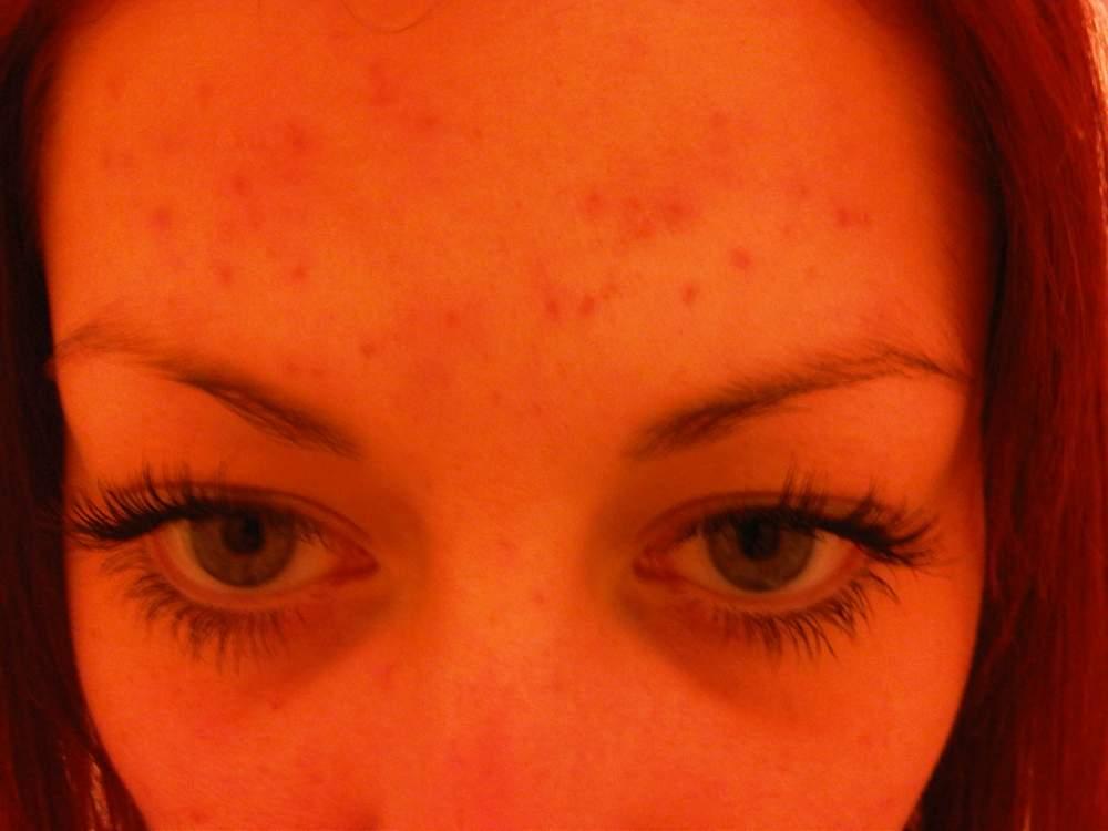 Forehead (No Make-Up) 11 Weeks on Tetralysal