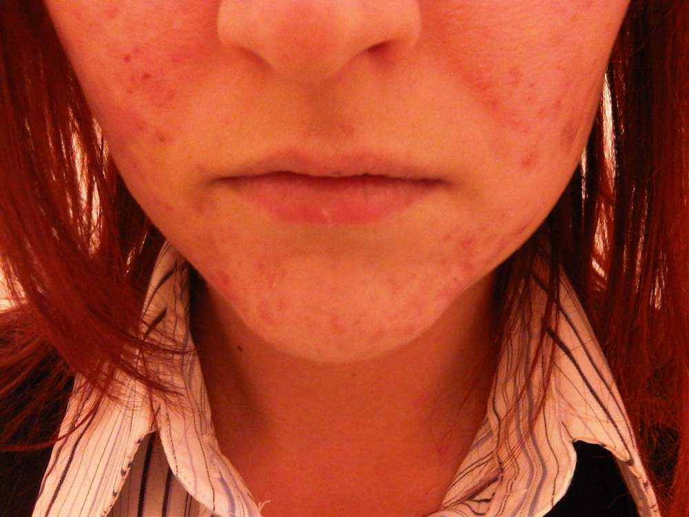 Chin and Cheeks (No Make-Up) 11 Weeks on Tetralysal