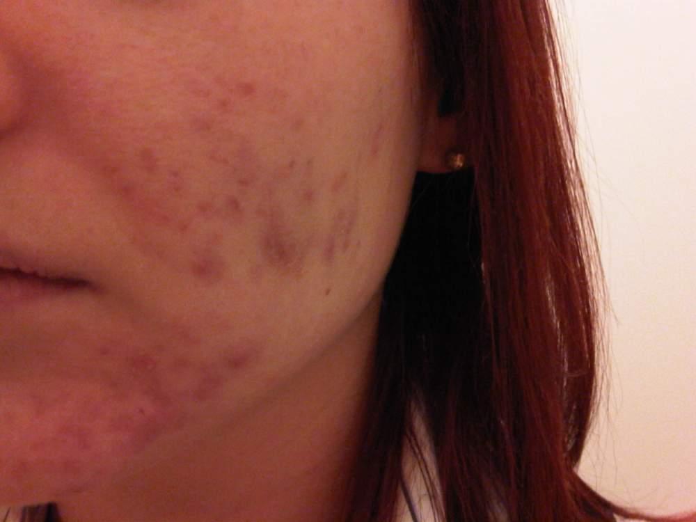 Left Cheek (No Make-Up) 11 Weeks on Tetralysal