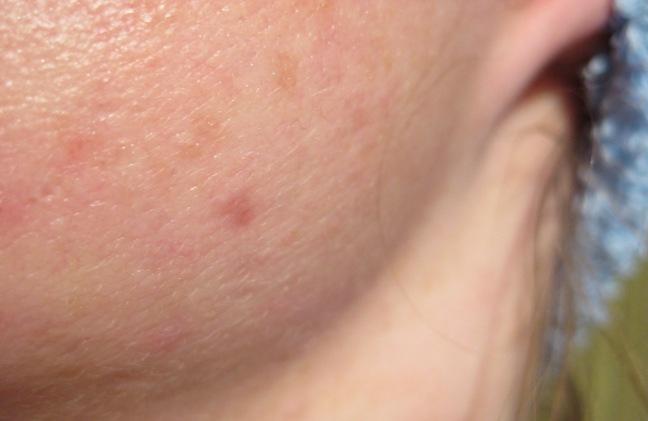 Nodule/cyst treatment