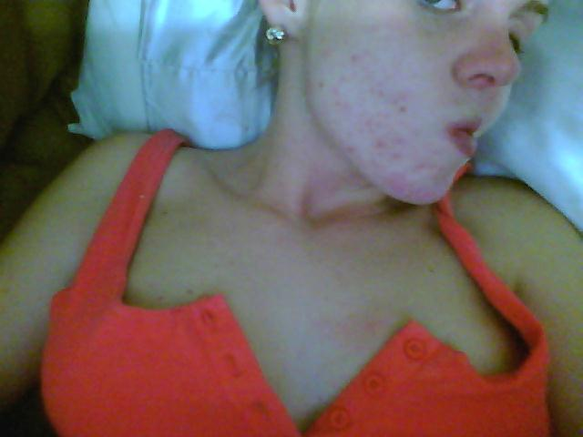 THIS IS WHAT A SALICYLIC ACID PEEL DOES TO YOUR FACE !