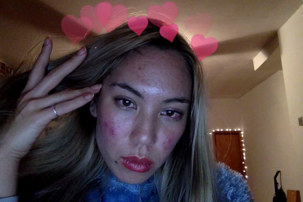 <3 acne