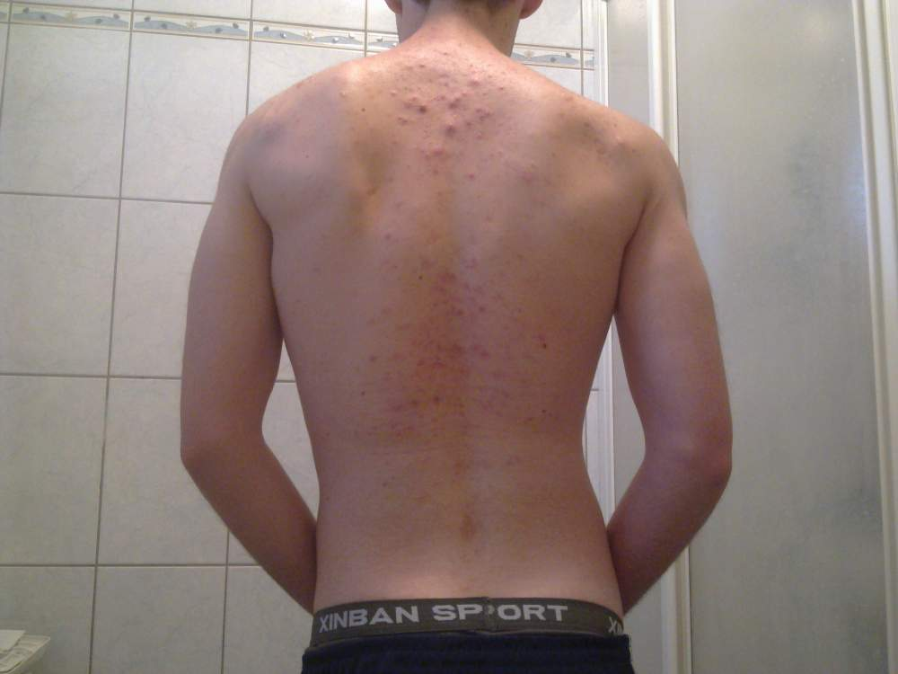 Back Acne (March 2012)