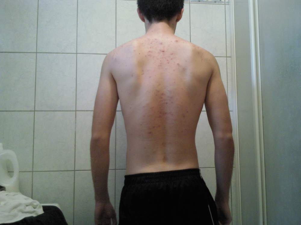 Back acne and scars 01.11.2012.