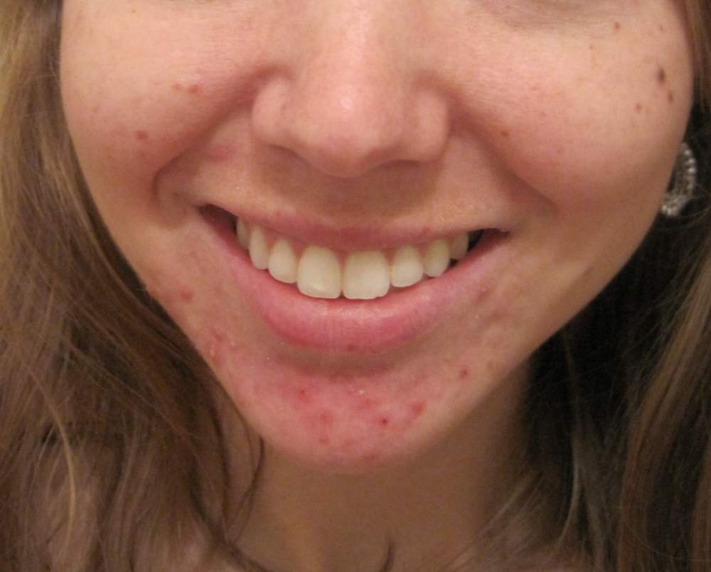 Before-cystic acne