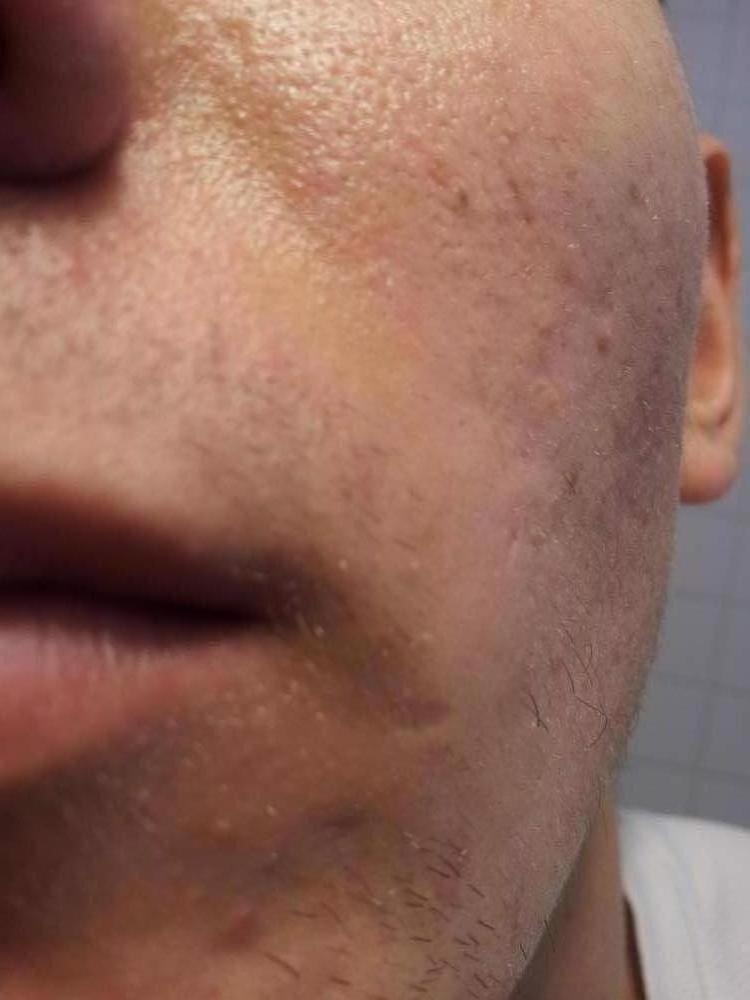 Left Cheek (front View)