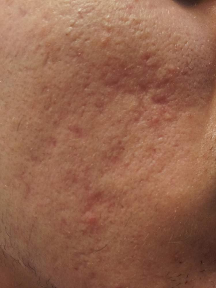 3 months post active FX laser treatment