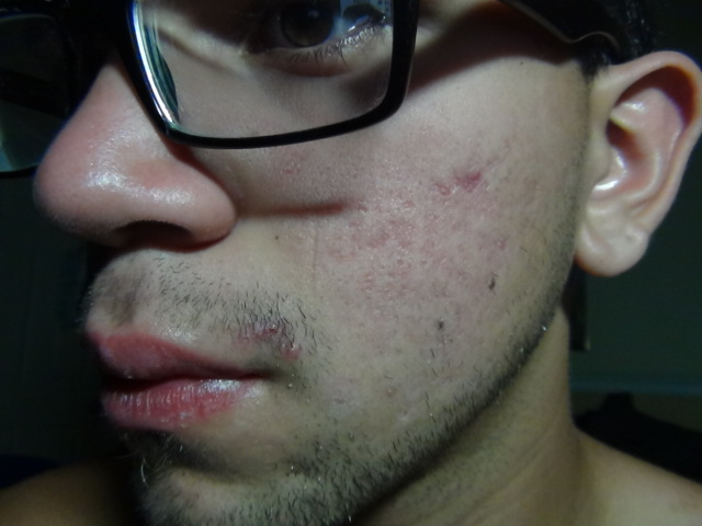 what do you guys think bad acne or no ?