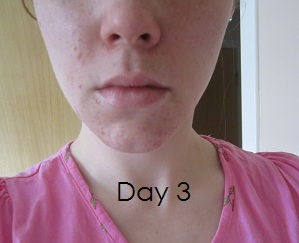 My Journey With Acne (Mild)