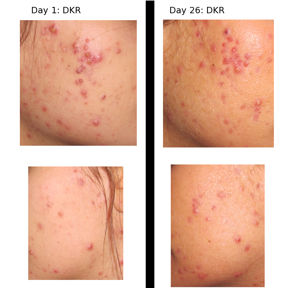 Acne.org Day 26 (before and after)