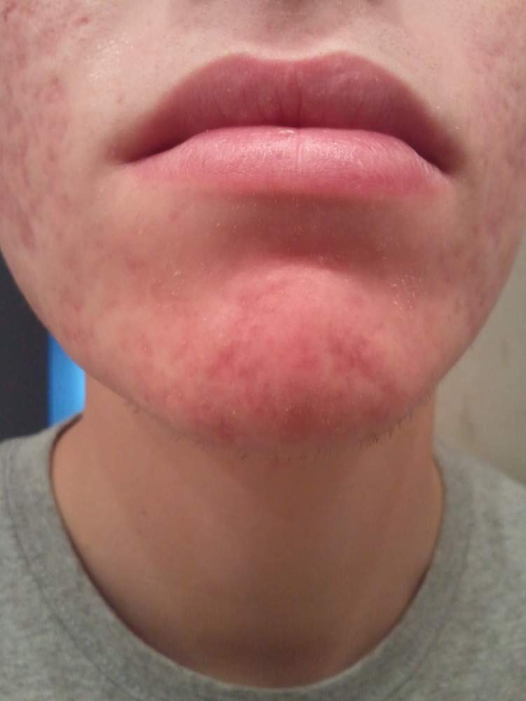 Post Accutane (2 weeks after ending the course) Pic 2