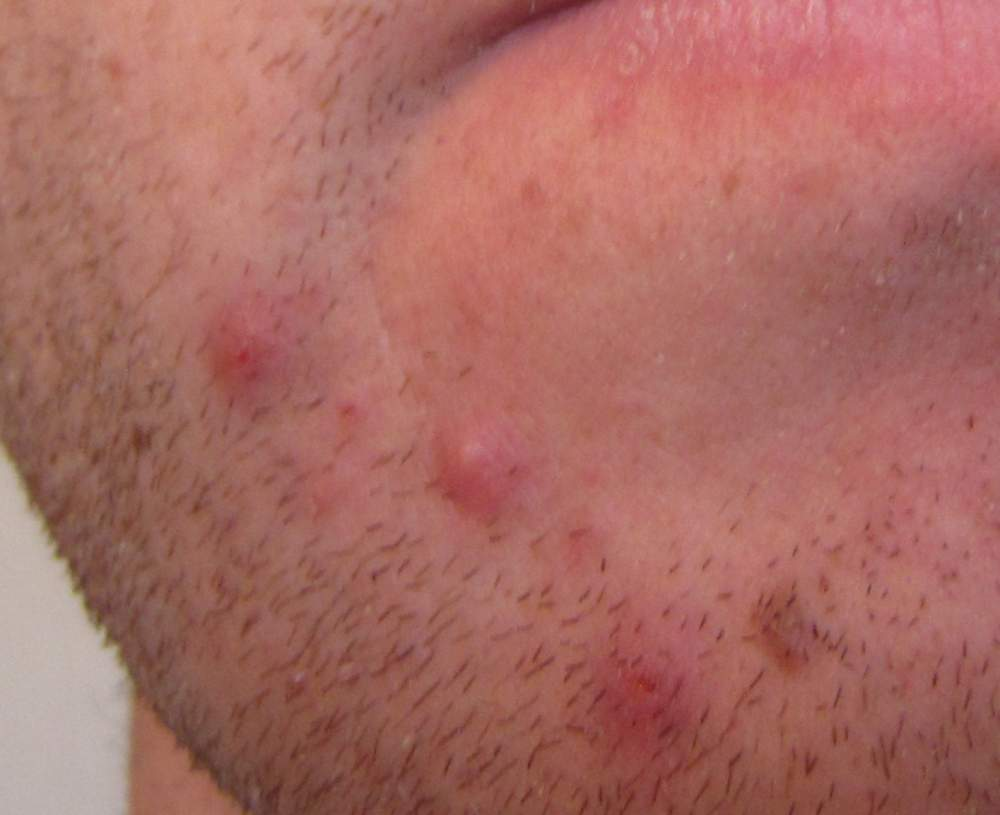 acne around chin area